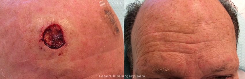 Mohs Micrographic Surgery for the Removal of Skin Cancer on the Forehead