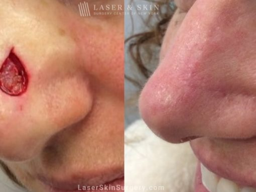Mohs Micrographic Surgery for the Removal of Skin Cancer on the Nose