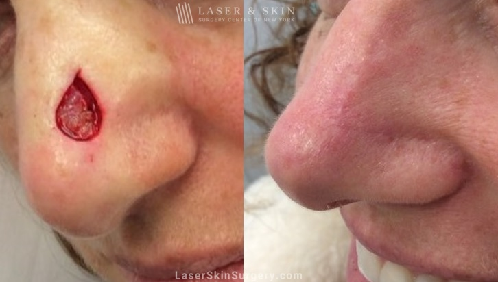 before and after image of mohs surgery for the removal of skin cancer on the side of a woman's nose