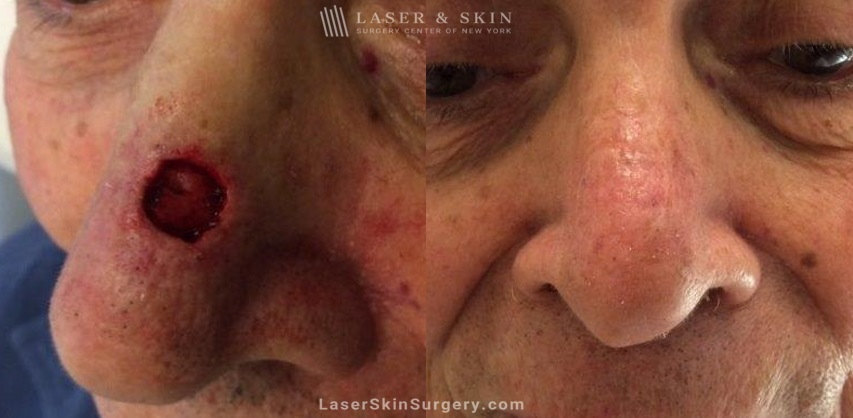 before and after image of mohs surgery for the removal of skin cancer on the side of a man's nose