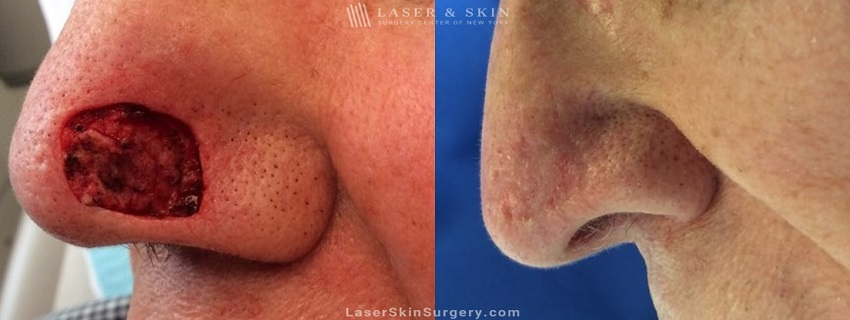 Mohs Micrographic Surgery for the Removal of Skin Cancer on the Side of a Nose