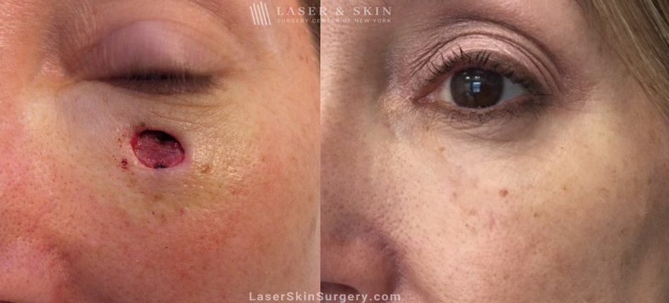 before and after image of mohs surgery for the removal of skin cancer under a woman's eye
