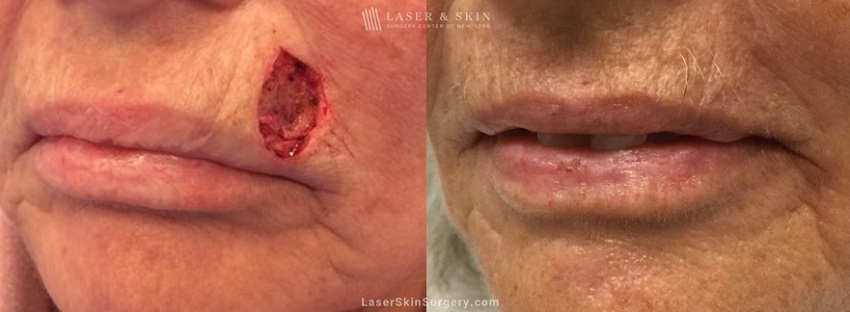 before and after image of mohs surgery for the removal of skin cancer just above a woman's lip