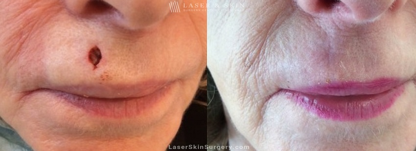 Mohs Micrographic Surgery for the Removal of Skin Cancer Above the Lip