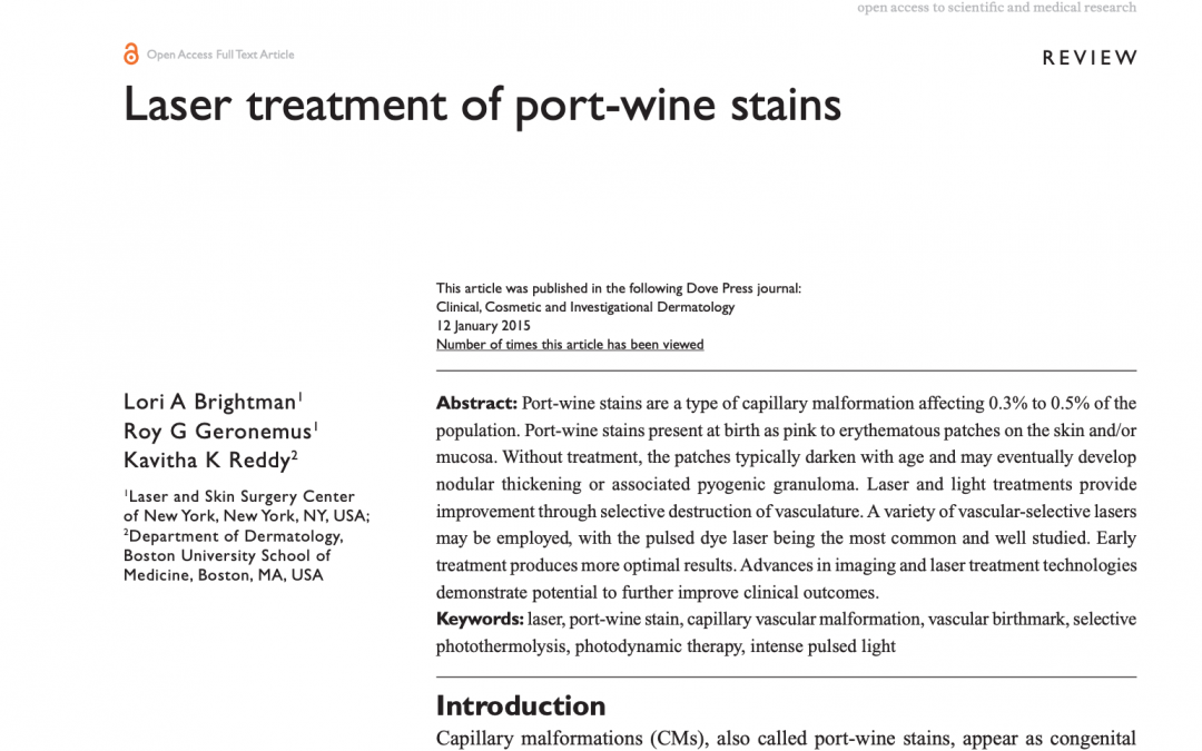 port wine stain treatment article in new york