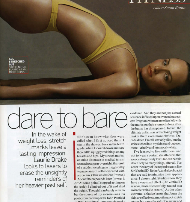 stretch mark treatment article in new york