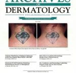 New Publication on Tattoo Removal Featured on the Cover of Archives of Dermatology