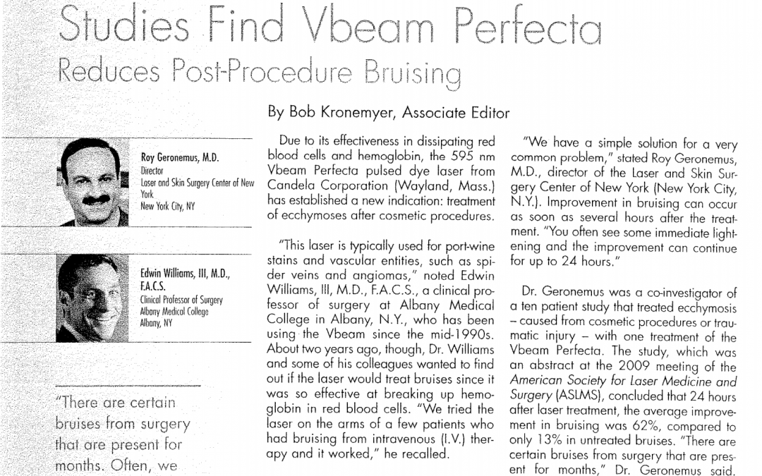 vbeam perfecta bruising treatment article new york