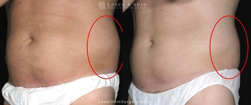before and after image of a coolsculpting treatment for unwanted belly fat on a man's midsection