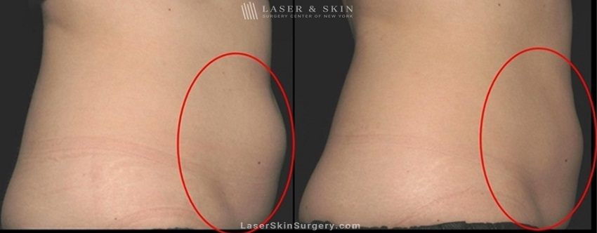 before and after image of a coolsculpting treatment for unwanted belly fat on a woman