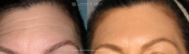 Dysport Injections to Reduce the Appearance of Wrinkles in the Forehead