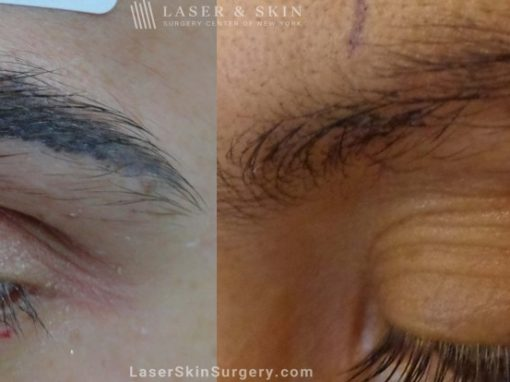 Laser Treatment for Permanent Makeup Removal on an Eyebrow