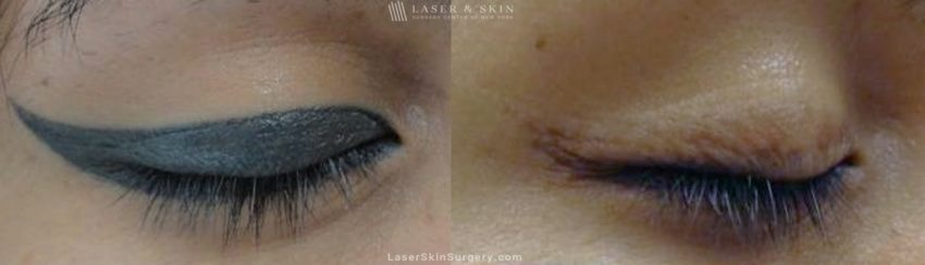 Laser Treatment for Permanent Makeup Removal on an Eyelid