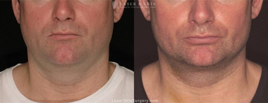 Laser Assisted Lipolysis to Remove Stubborn Fat in a Man's Neck Area