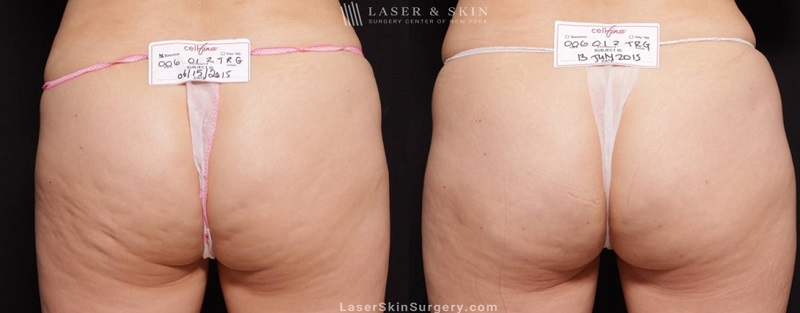 before and after image of a cellfina treatment to improve the appearance of cellulite on the buttocks