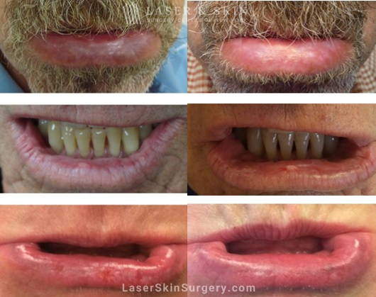 before and image of a fraxel laser treatment for actinic cheilitis