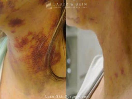 Laser Treatment for Bruising on the Neck