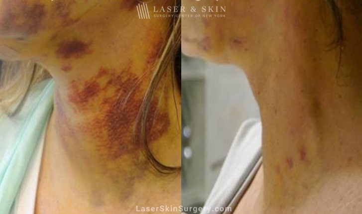 before and after image of a laser treatment for bruising on a woman's neck