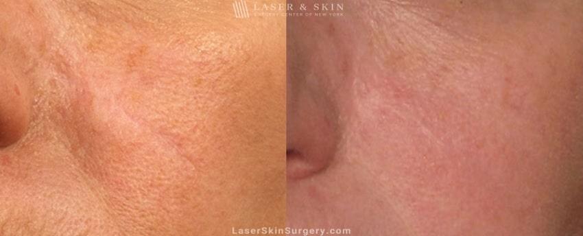 Laser Treatment to Remove a Facial Scar