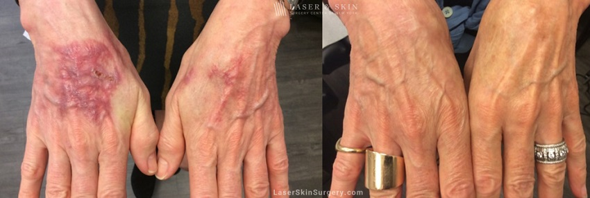 Laser treatment to remove dark scarring on patient's hands
