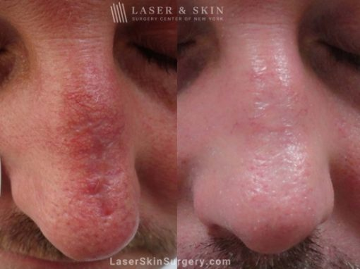 Laser Treatment to Remove a Scar After Mohs Surgery
