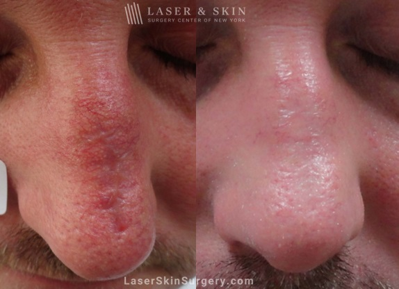 before and after image after a laser treatment for a scar on the top of a man's nose