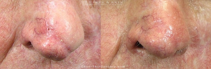 before and after image of a laser treatment for a scar on on the tip of a man's nose