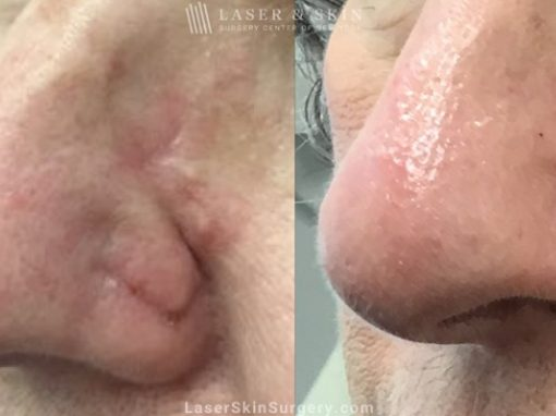 Laser treatment to remove scar from patient's nose