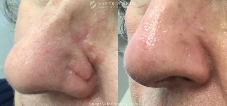 Laser Treatment for the Removal of a Facial Scar