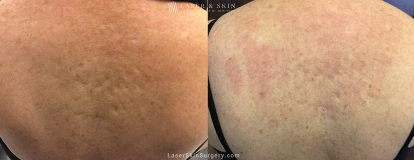 before and after image of a laser treatment to treat scars related to back acne