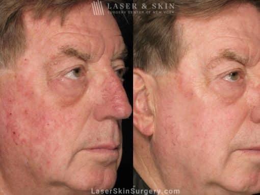 Laser Treatment for Broken Blood Vessels on a Man's Face
