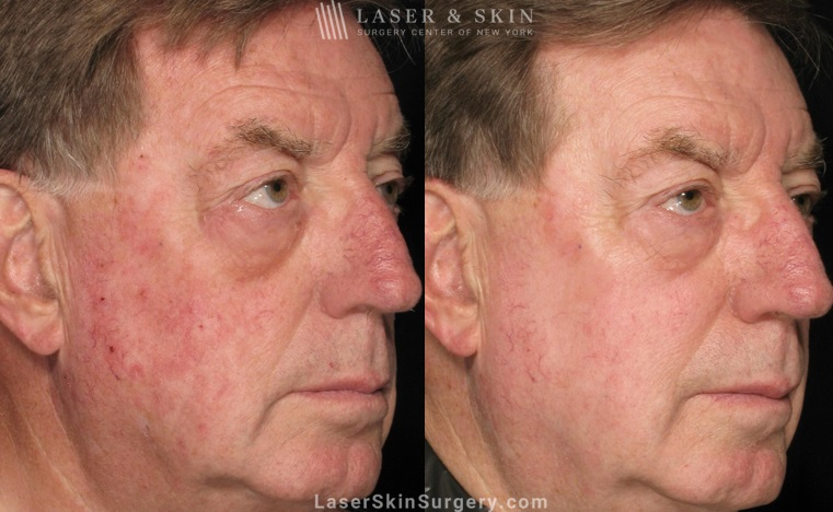 before and after image of a laser treatment for broken blood vessels on a man's face