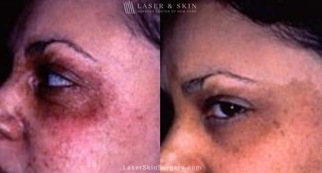 Laser Treatment for Cafe au Lait – Pigmented Birthmarks