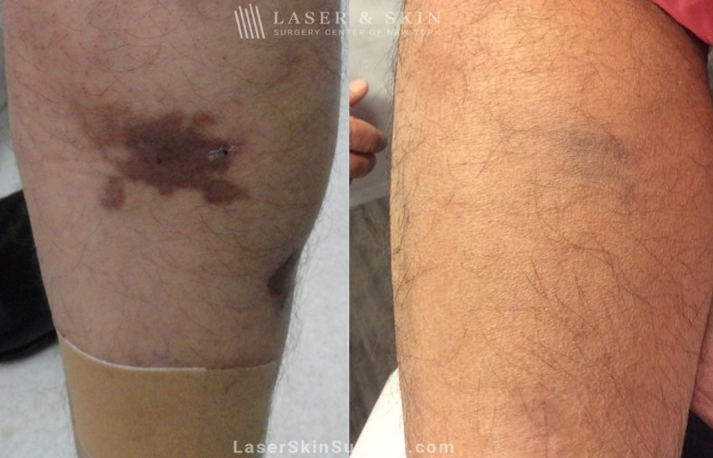 before and after image of a laser treatment to treat a hyper pigmentation on the leg