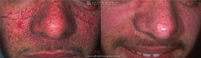 before and after image of a laser treatment for Tuberous Sclerosis angiofibromas on a man's face