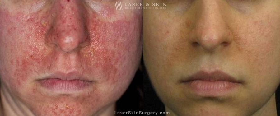 before and after image of a laser treatment for Tuberous Sclerosis angiofibromas on a woman's face