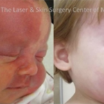 FOR IMMEDIATE RELEASE: Candela® Announces Results of The Largest Published Study of Infants And Children Using Vbeam® Laser System.