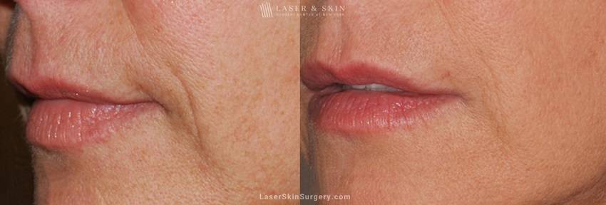 before and after image of an Ultherapy laser treatment for sagging skin and facial lines and wrinkles