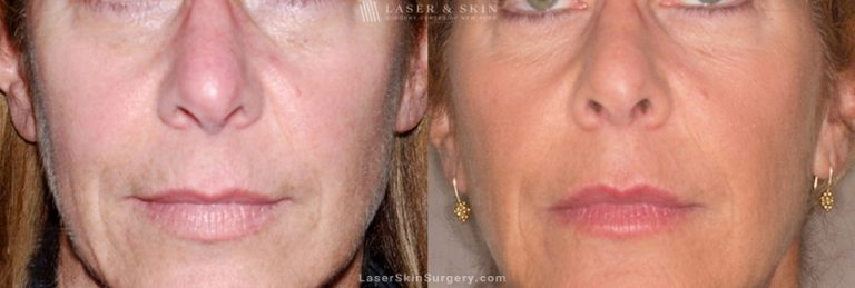 Ultherapy to Treat Sagging Skin, Lines and Wrinkles on the Face and Neck