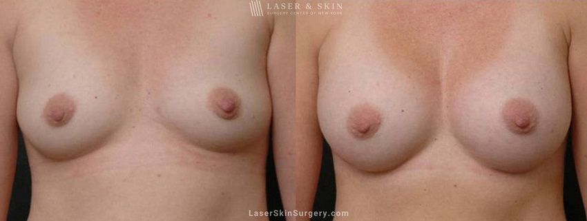Breast Augmentation to Create Fuller Breasts