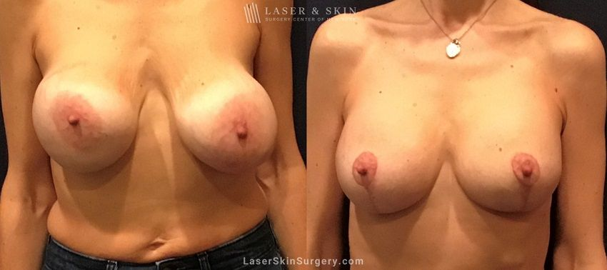 Breast Reduction to Enhance the Breasts