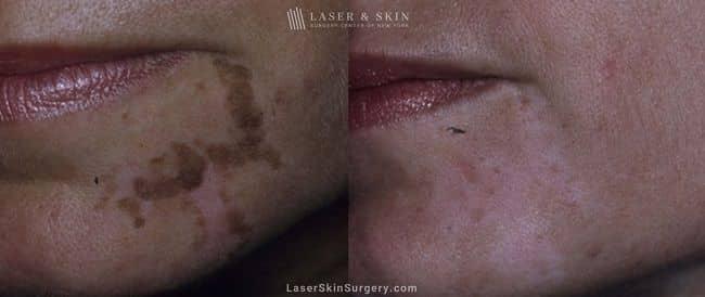 Laser Treatment for Cafe au Lait Macules