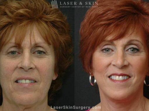 Facelift to Address Aging Symptoms