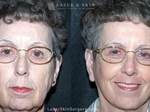 Facelift to Refresh the Appearance