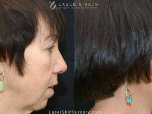 Facelift to Rejuvenate the Appearance