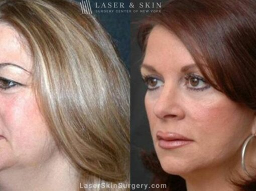 Facelift to Reverse Aging Symptoms