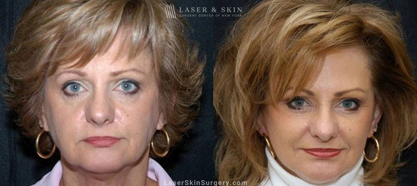 Side by Side comparison of a woman's face before and after her treatment for Sagging skin in NYC, NY. She looks more youthful with no sagging skin.