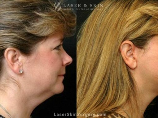 Facelift to Treat Aging Symptoms