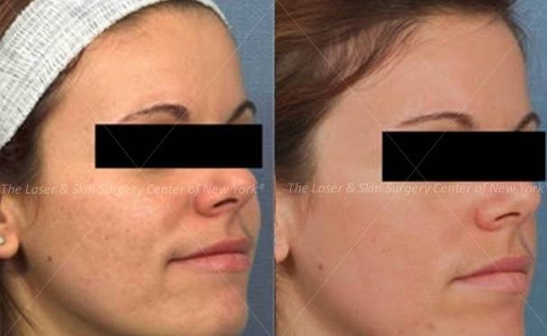 Fraxel Laser to Treat Facial Scars