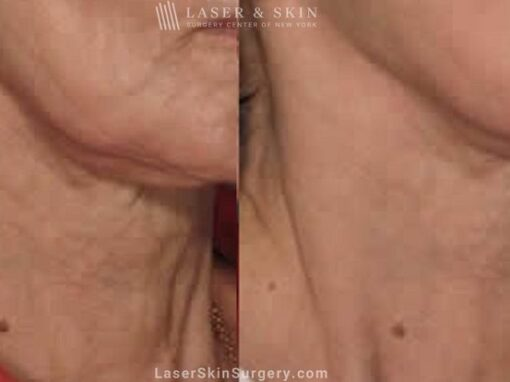 Fraxel Laser for Neck Rejuvenation